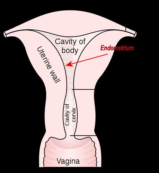 Sex after endometrial ablasion
